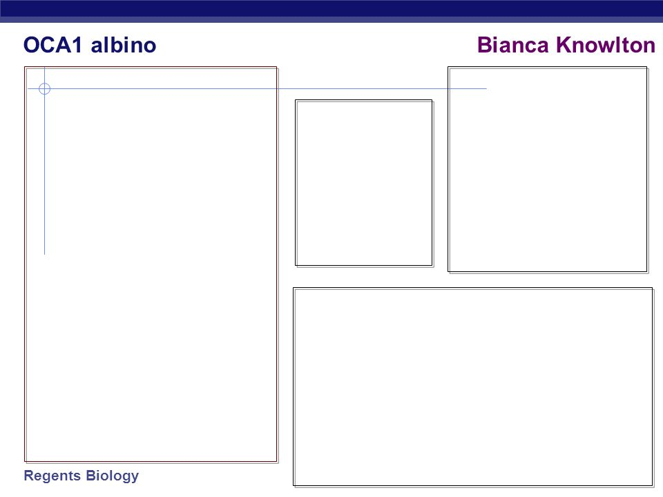 OCA1 albino Bianca Knowlton