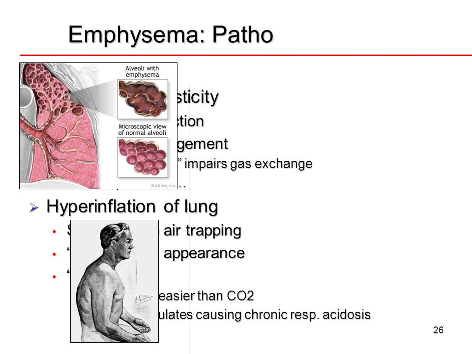 Emphysema: Patho Loss of lung elasticity Hyperinflation of lung