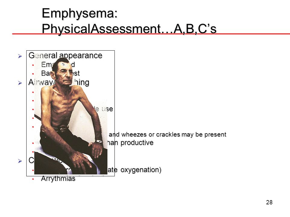 Emphysema: PhysicalAssessment…A,B,C's