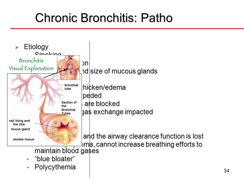 Chronic Bronchitis: Patho