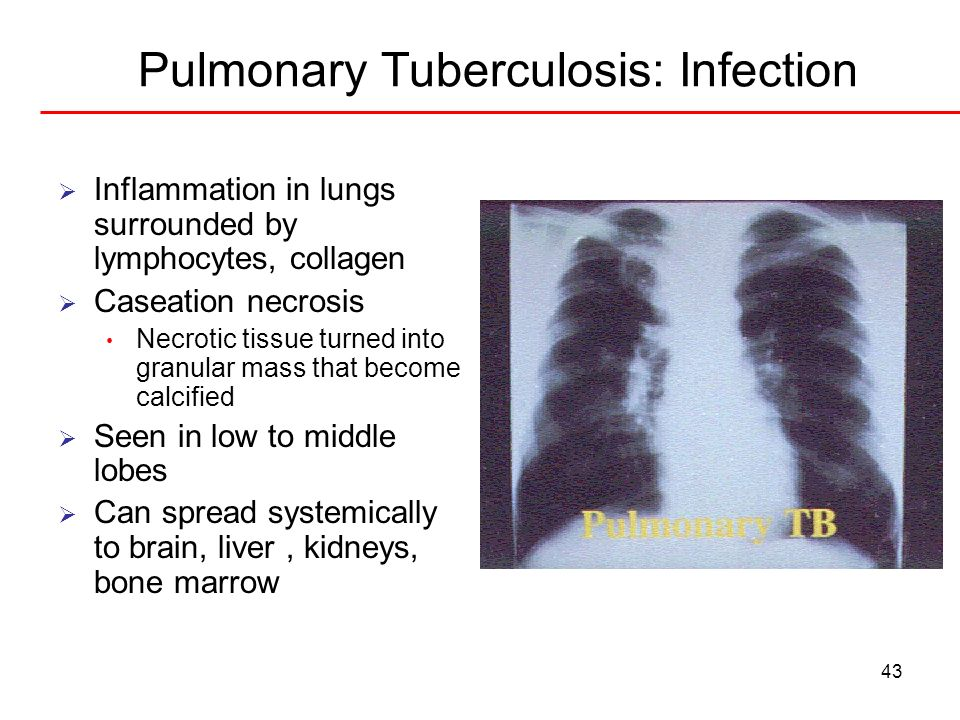 Pulmonary Tuberculosis: Infection