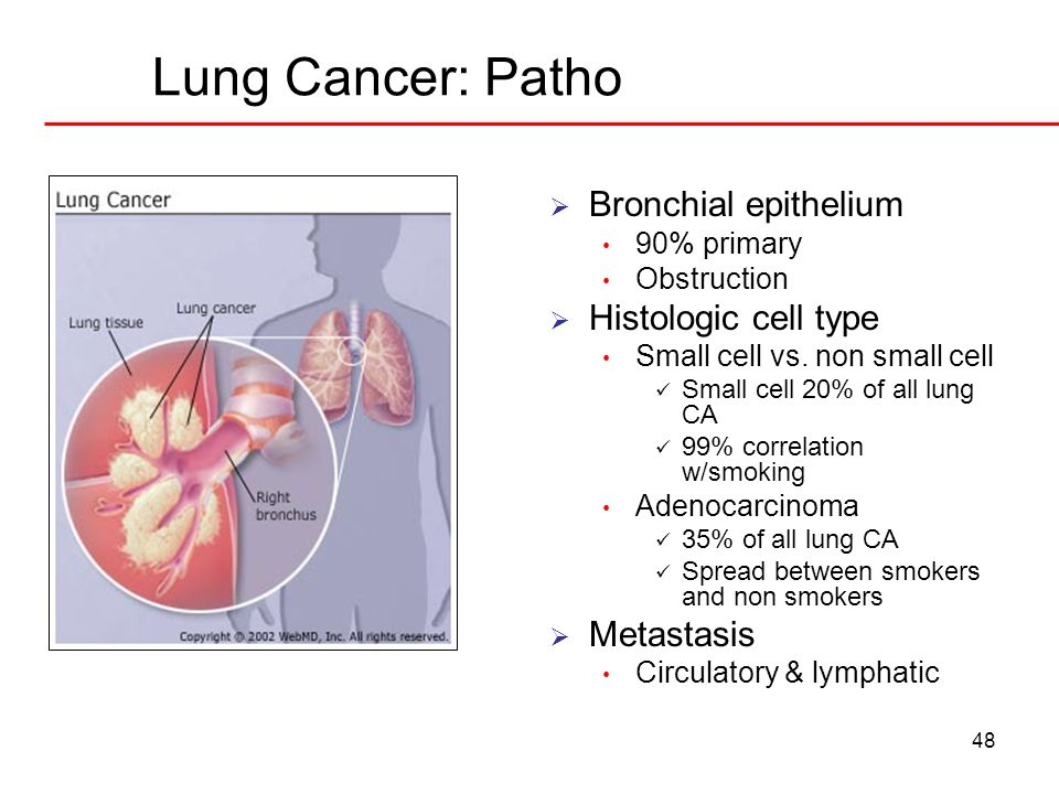 Lung Cancer: Patho Bronchial epithelium Histologic cell type