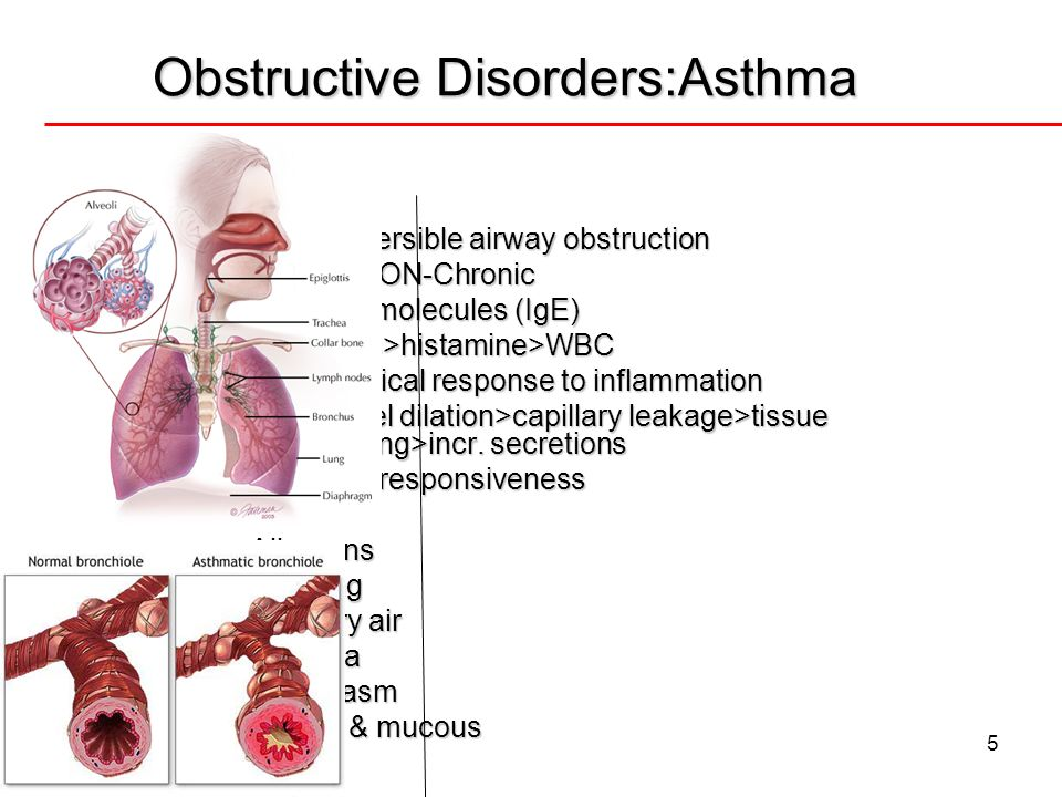 Obstructive Disorders:Asthma