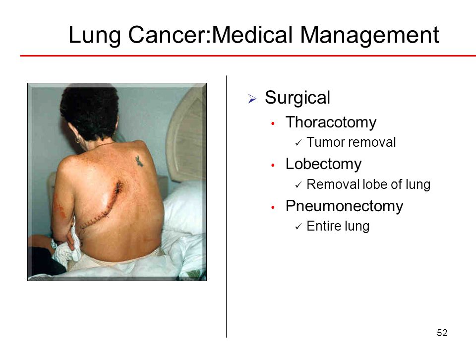 Lung Cancer:Medical Management