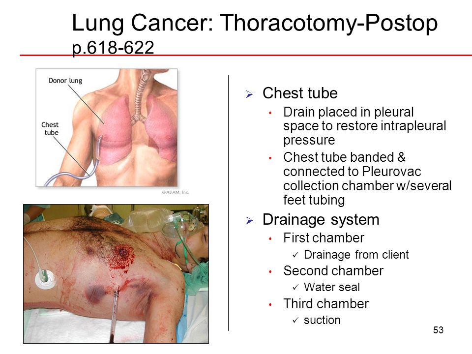 Lung Cancer: Thoracotomy-Postop p.618-622