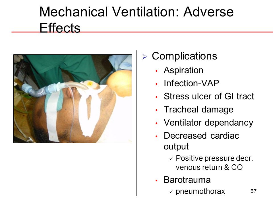 Mechanical Ventilation: Adverse Effects