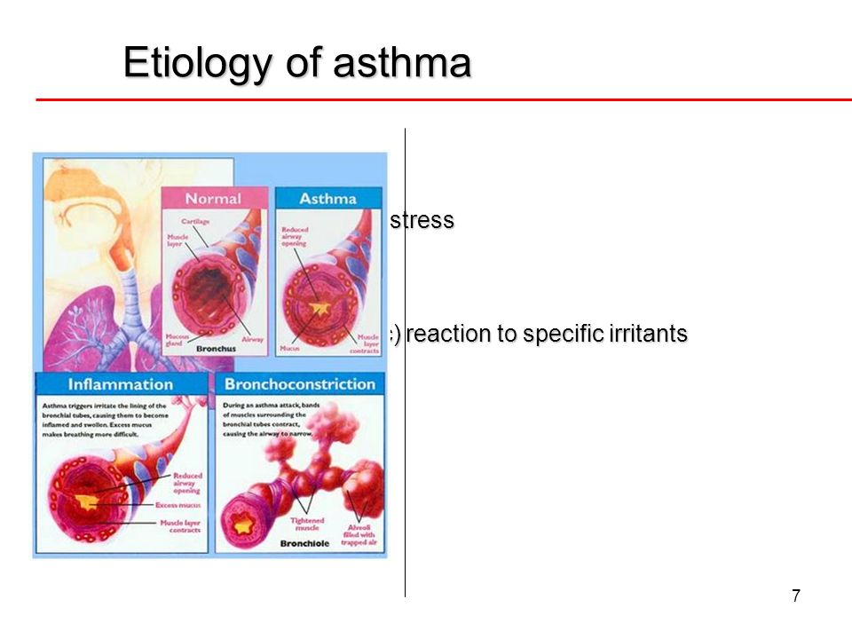 Etiology of asthma Intrinsic etiologies uncertain causes
