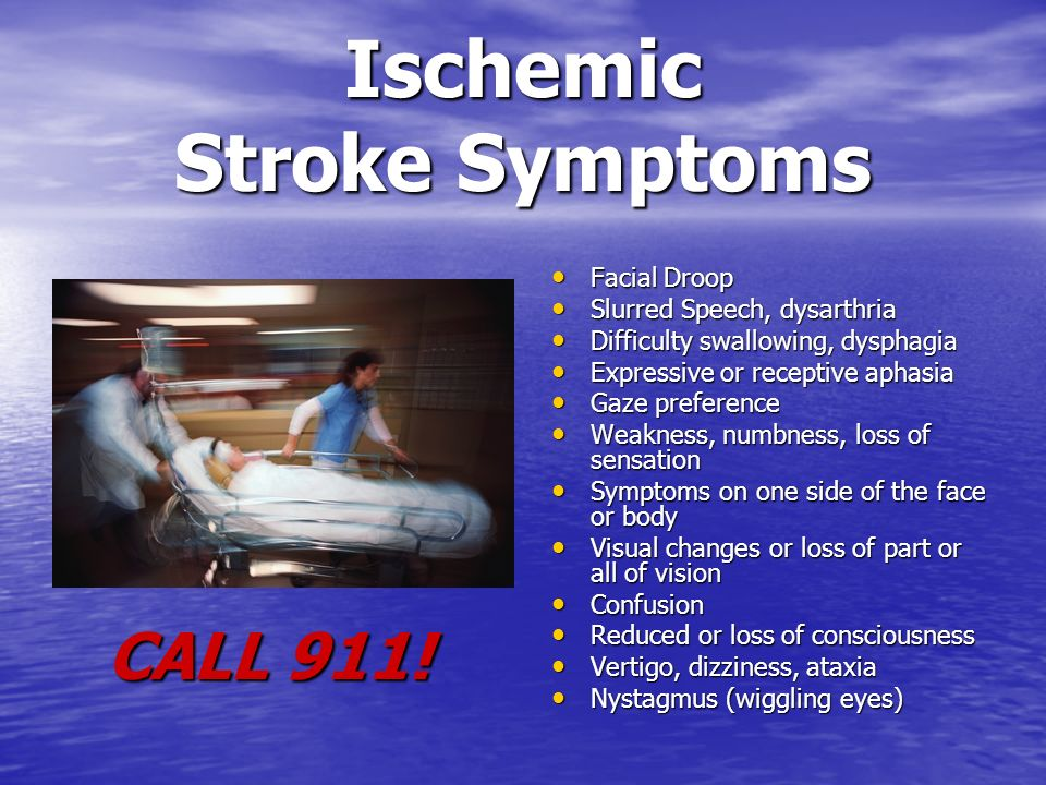 KNOW STROKE. - ppt video online download