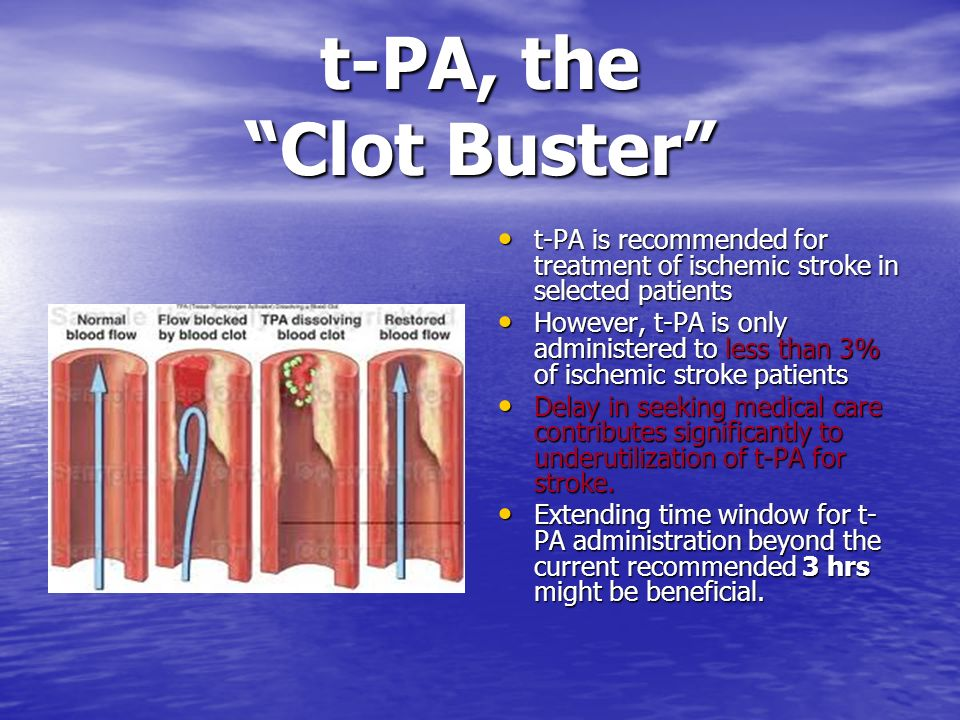 t-PA, the Clot Buster t-PA is recommended for treatment of ischemic stroke in selected patients.
