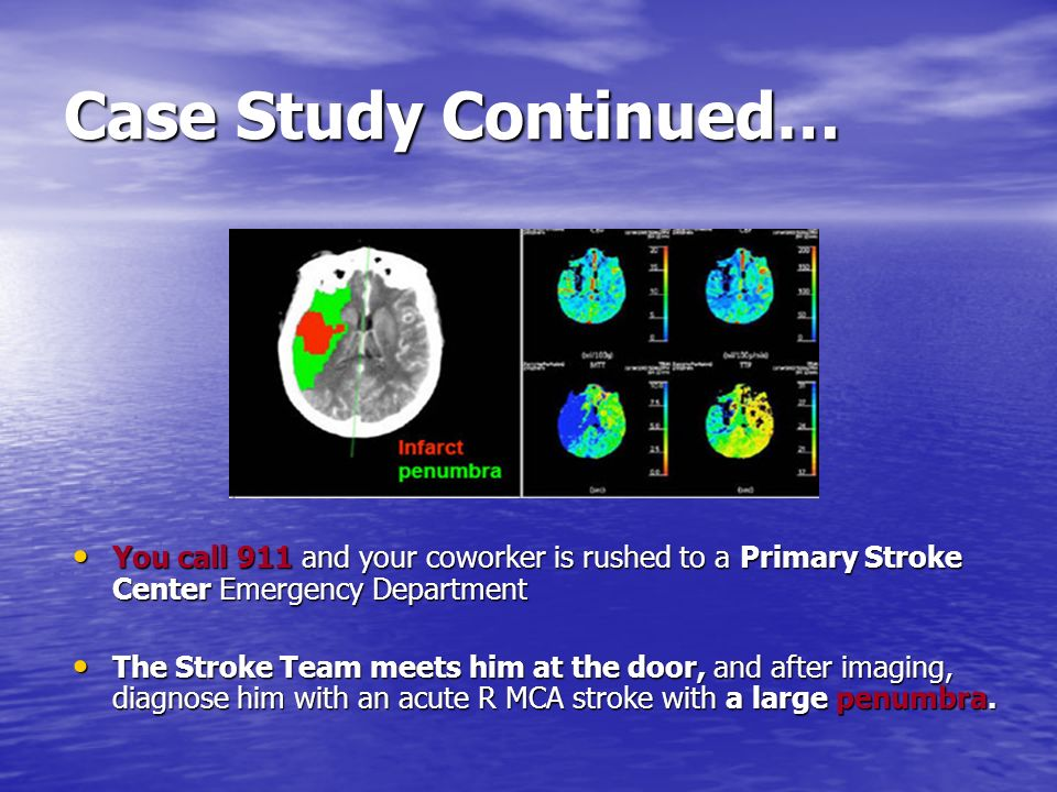 Case Study Continued… You call 911 and your coworker is rushed to a Primary Stroke Center Emergency Department.