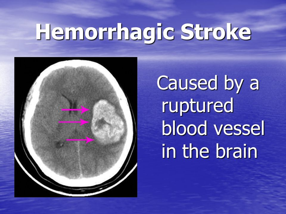 Hemorrhagic Stroke Caused by a ruptured blood vessel in the brain