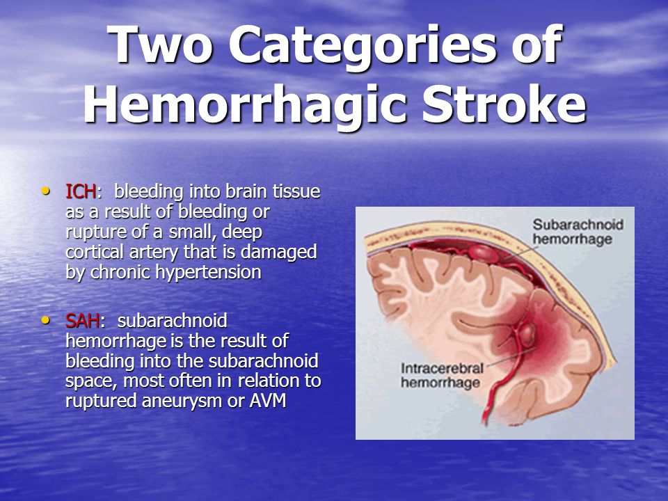 Two Categories of Hemorrhagic Stroke