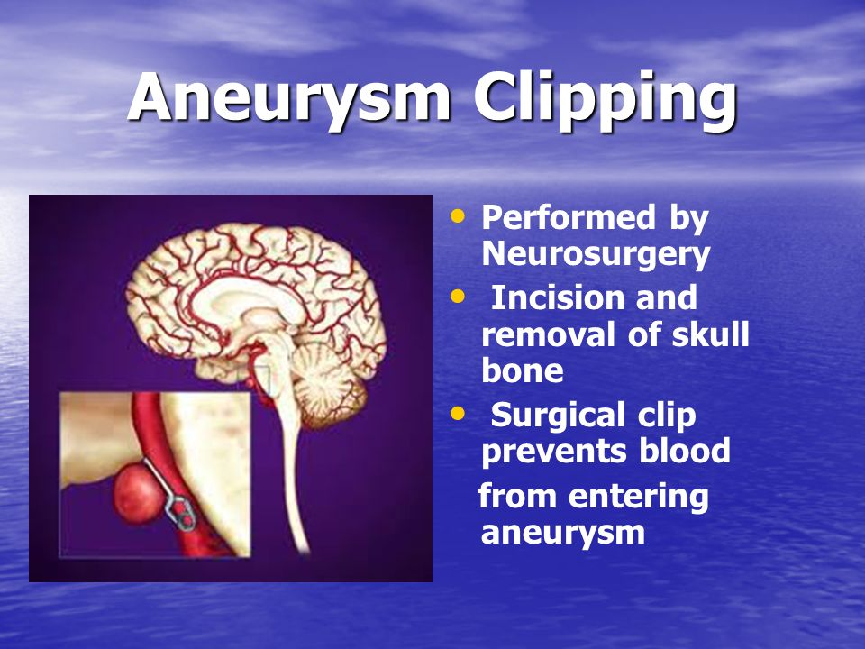 Aneurysm Clipping Performed by Neurosurgery