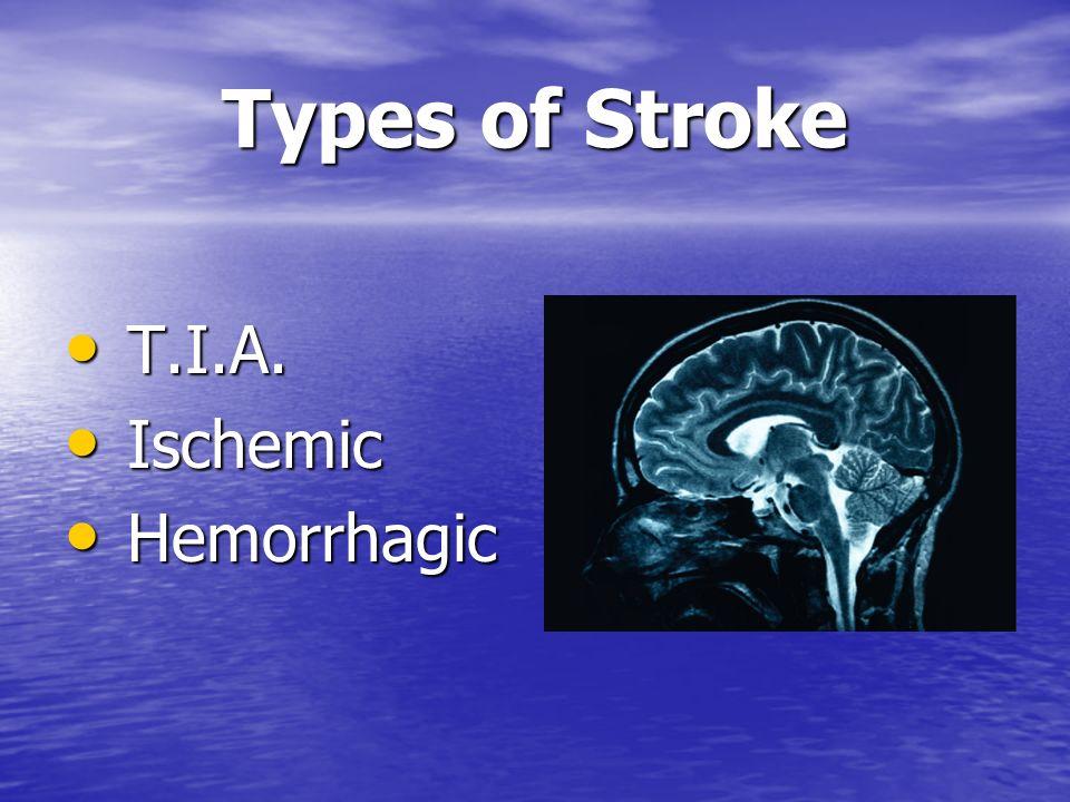 Types of Stroke T.I.A. Ischemic Hemorrhagic