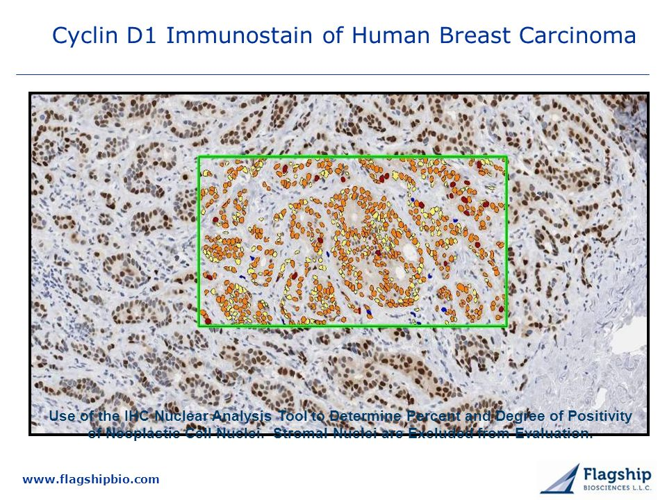 Cyclin D1 Immunostain of Human Breast Carcinoma