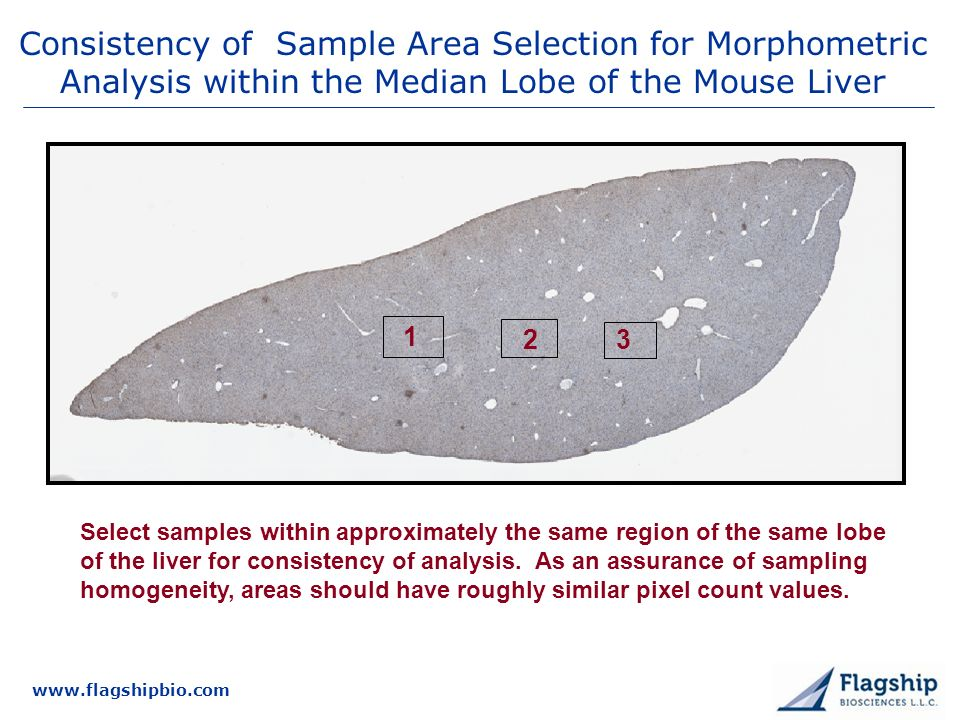 3/25/2017 Consistency of Sample Area Selection for Morphometric Analysis within the Median Lobe of the Mouse Liver.