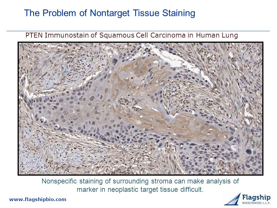 PTEN Immunostain of Squamous Cell Carcinoma in Human Lung