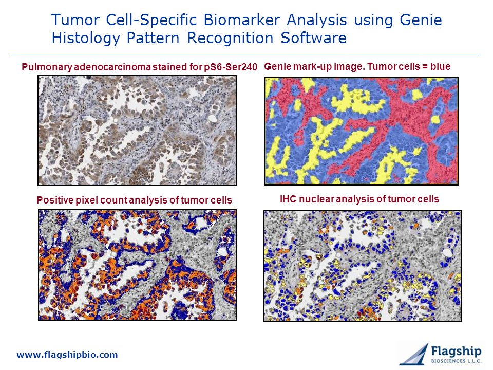3/25/2017 Tumor Cell-Specific Biomarker Analysis using Genie Histology Pattern Recognition Software.