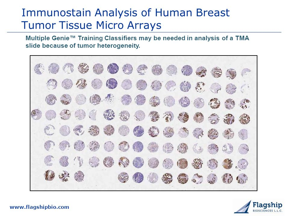 Immunostain Analysis of Human Breast Tumor Tissue Micro Arrays