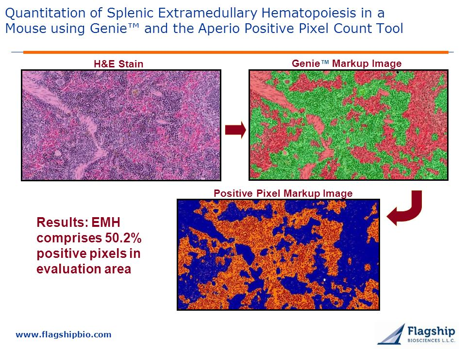 Results: EMH comprises 50.2% positive pixels in evaluation area