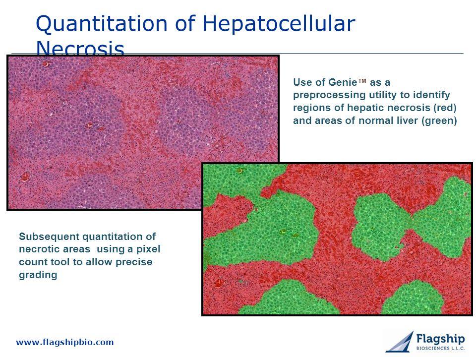 Quantitation of Hepatocellular Necrosis