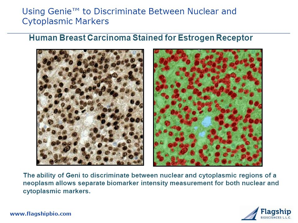 Using Genie™ to Discriminate Between Nuclear and Cytoplasmic Markers