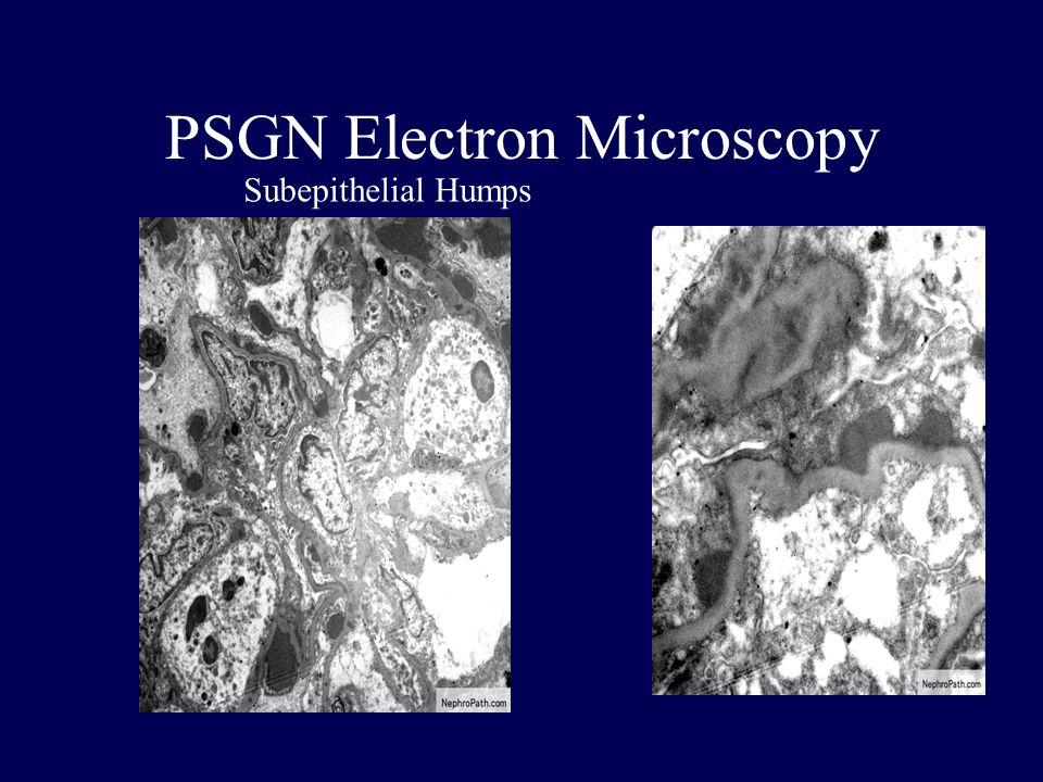 PSGN Electron Microscopy