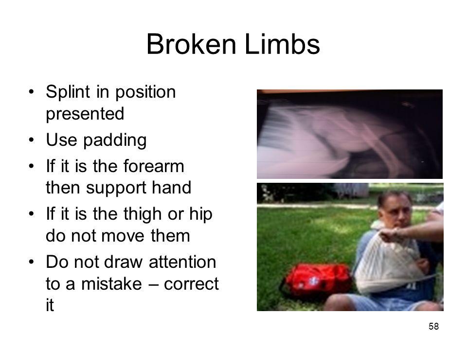 Broken Limbs Splint in position presented Use padding