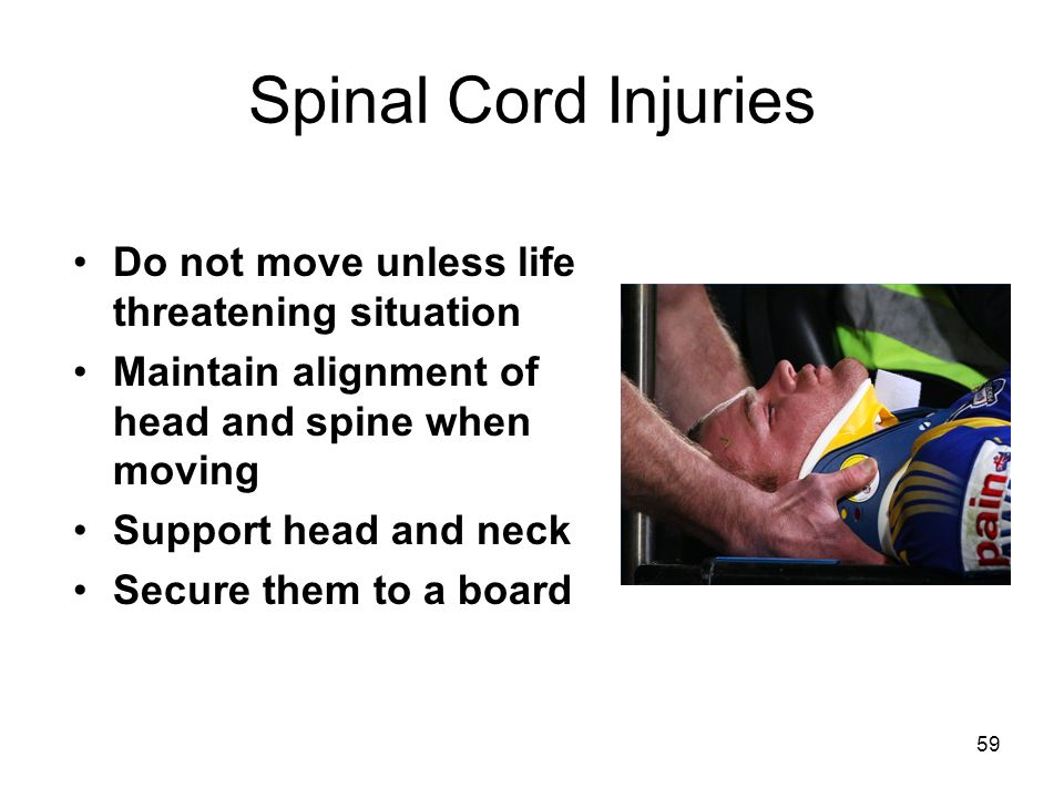 Spinal Cord Injuries Do not move unless life threatening situation