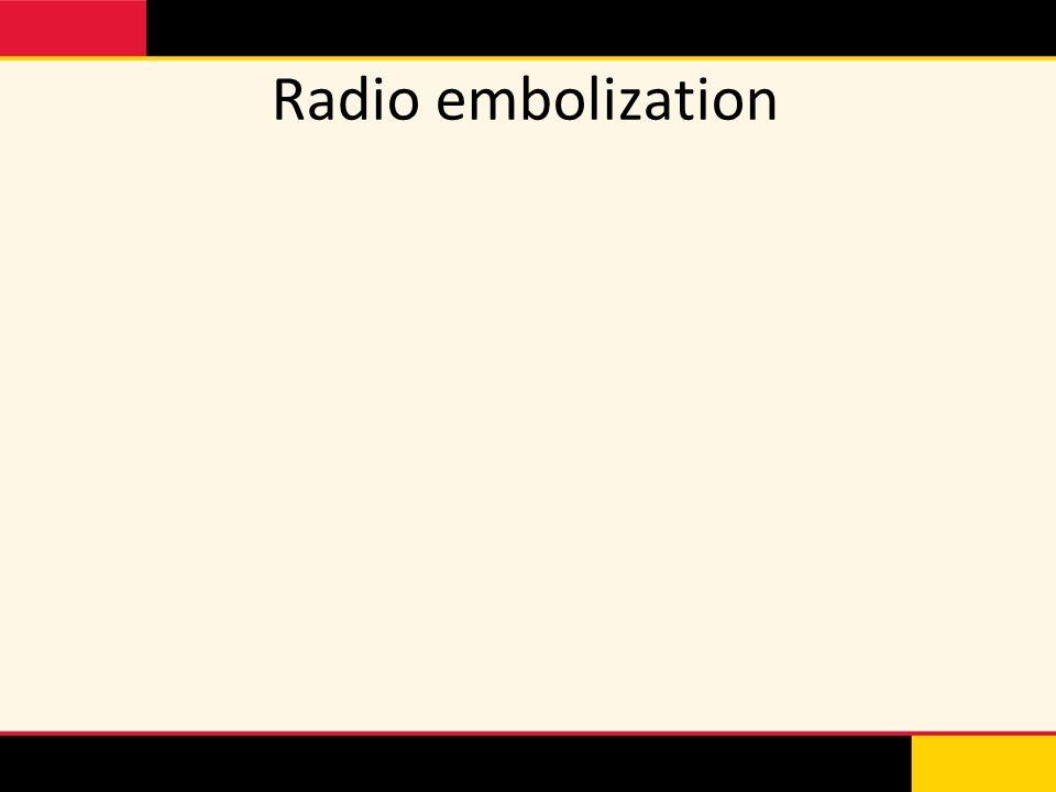 Radio embolization