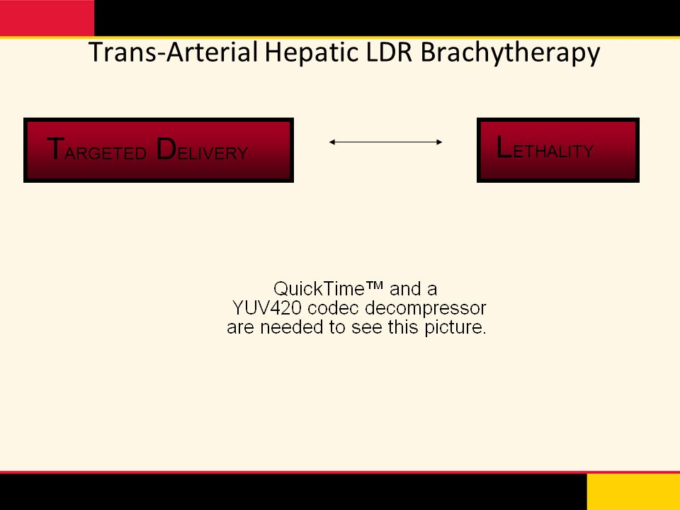 Trans-Arterial Hepatic LDR Brachytherapy