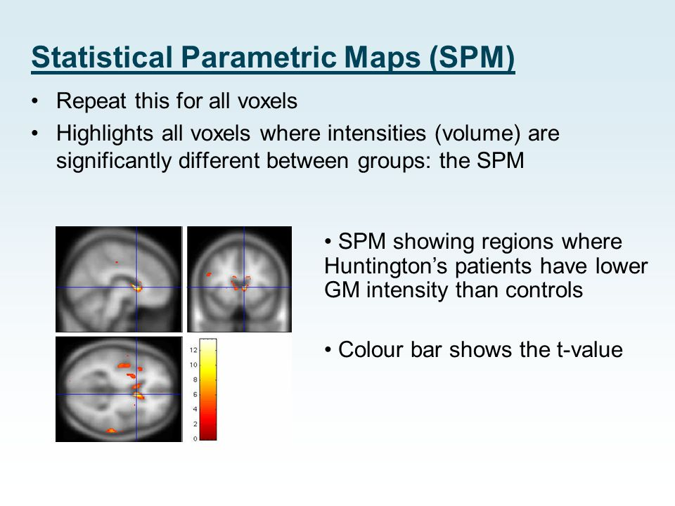 Statistical Parametric Maps (SPM)