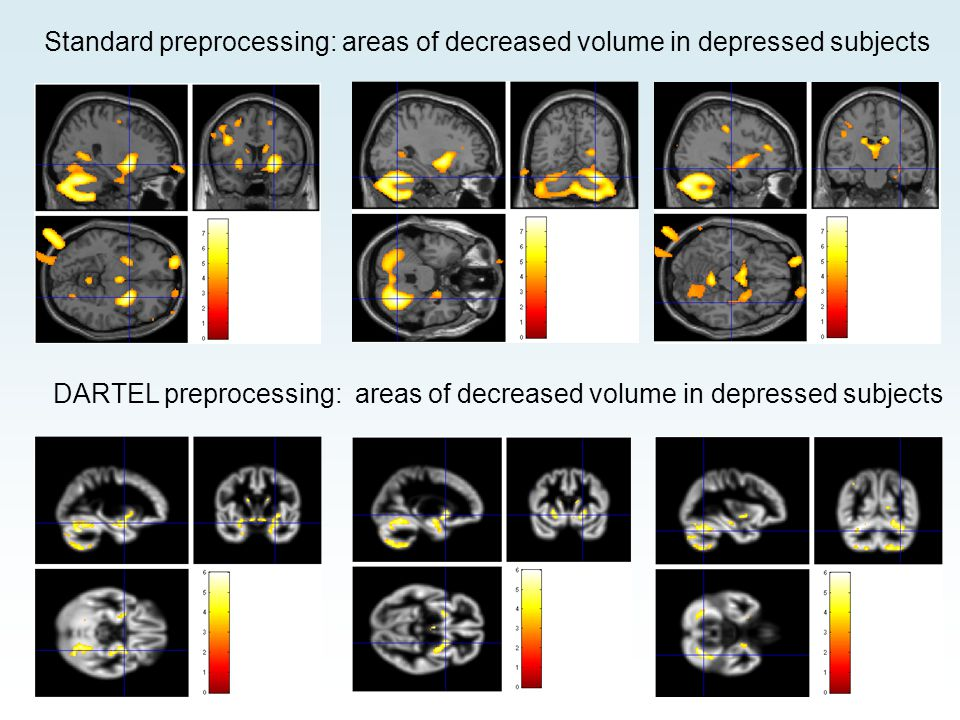 Standard preprocessing: areas of decreased volume in depressed subjects