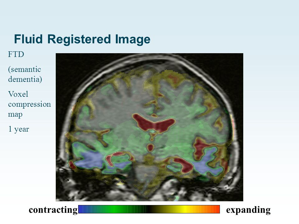 Fluid Registered Image