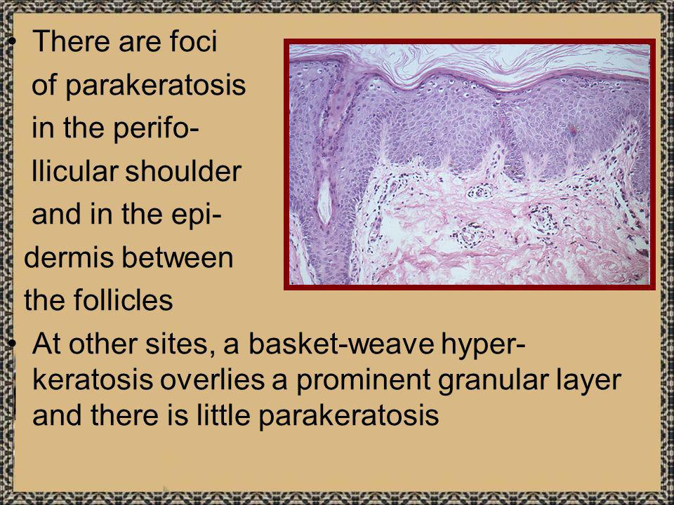 There are foci of parakeratosis. in the perifo- llicular shoulder. and in the epi- dermis between.