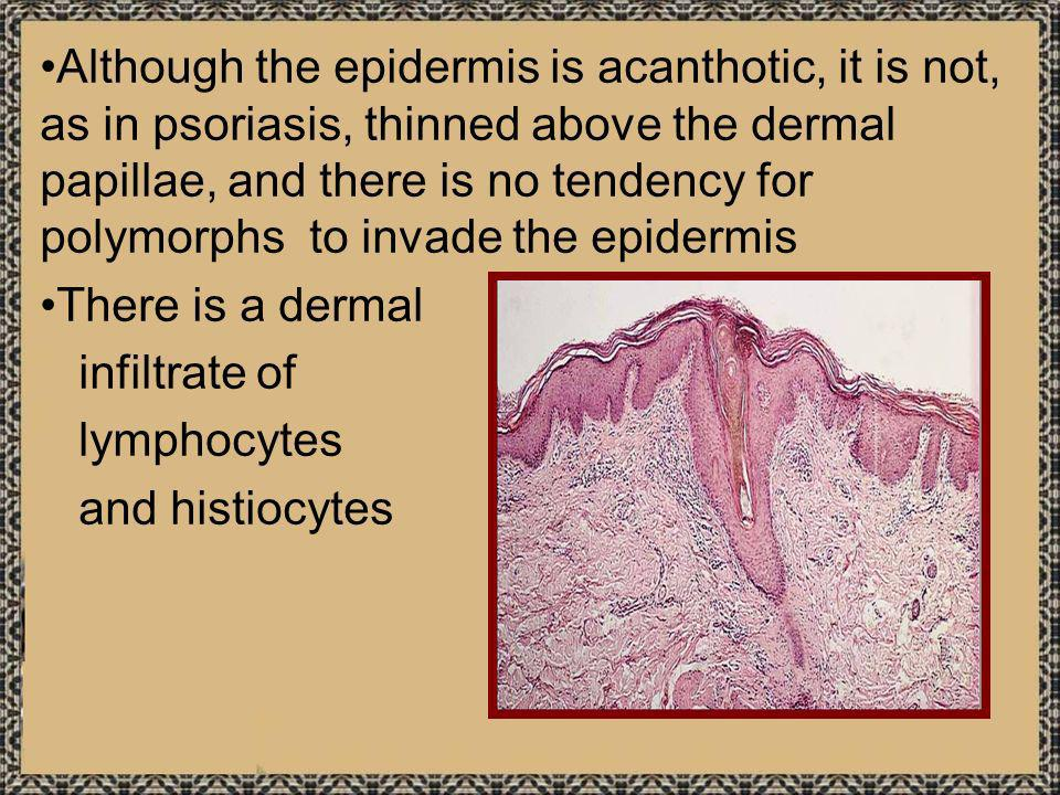 Although the epidermis is acanthotic, it is not, as in psoriasis, thinned above the dermal papillae, and there is no tendency for polymorphs to invade the epidermis