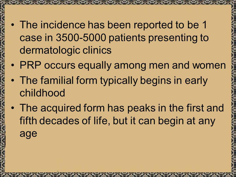 The incidence has been reported to be 1 case in 3500-5000 patients presenting to dermatologic clinics