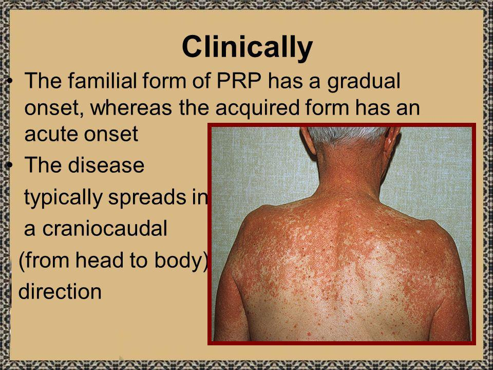 Clinically The familial form of PRP has a gradual onset, whereas the acquired form has an acute onset.