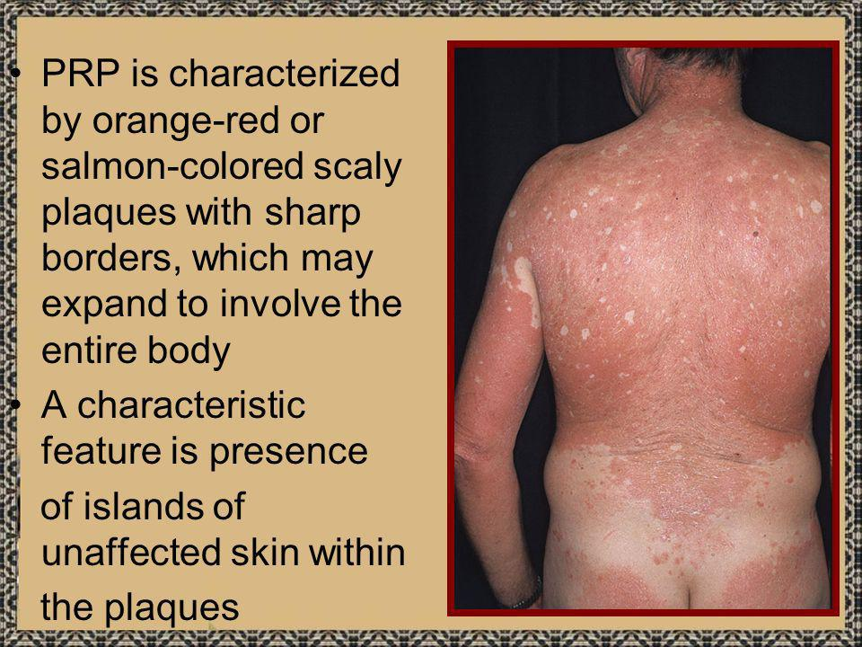 PRP is characterized by orange-red or salmon-colored scaly plaques with sharp borders, which may expand to involve the entire body