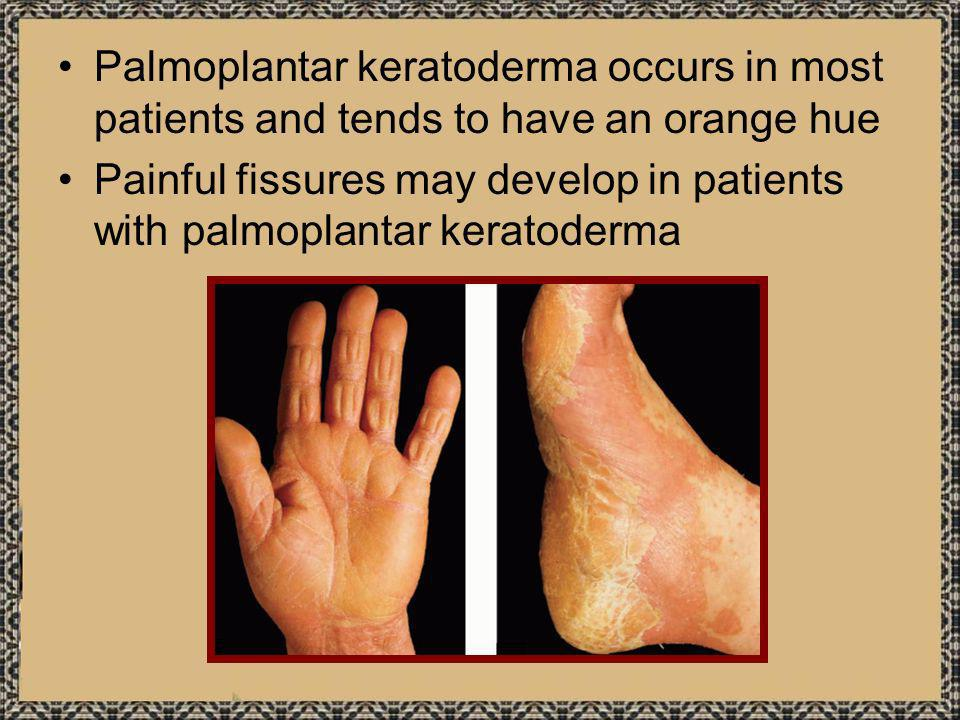 Palmoplantar keratoderma occurs in most patients and tends to have an orange hue