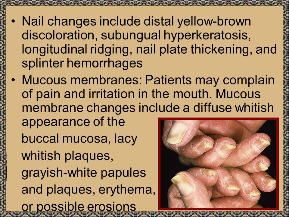 Nail changes include distal yellow-brown discoloration, subungual hyperkeratosis, longitudinal ridging, nail plate thickening, and splinter hemorrhages