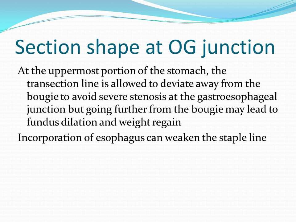 Section shape at OG junction