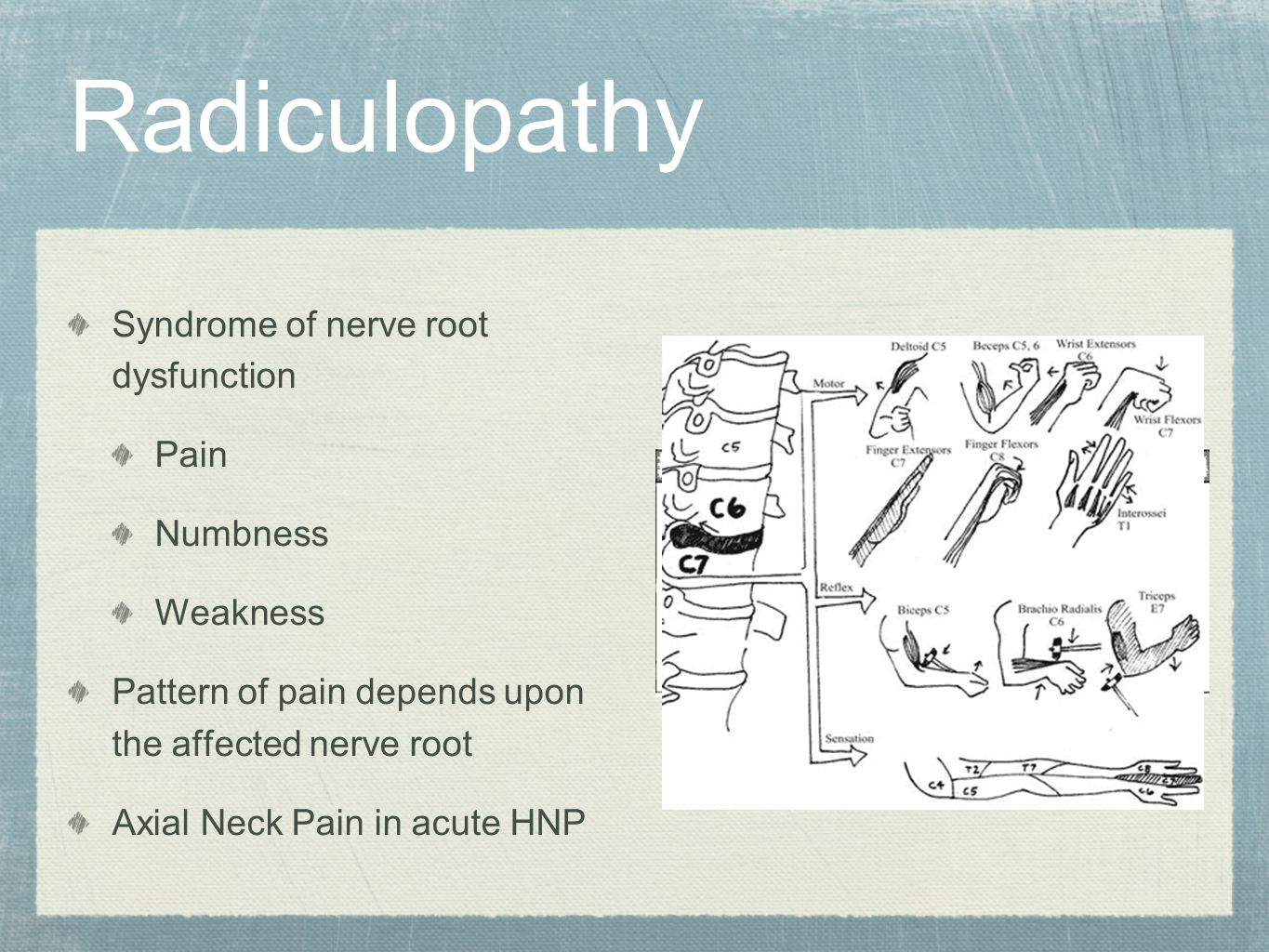 Radiculopathy Syndrome of nerve root dysfunction Pain Numbness