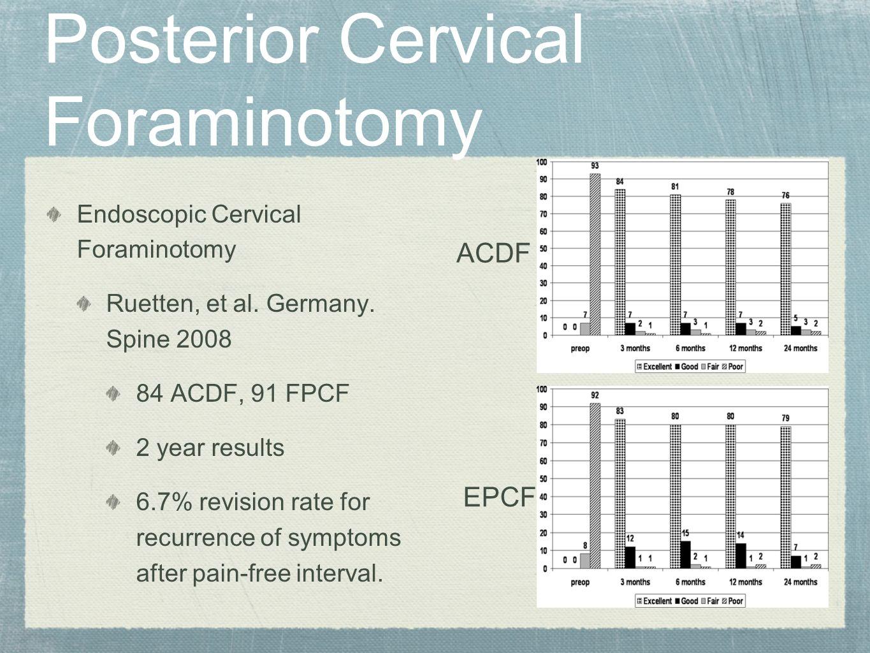 Posterior Cervical Foraminotomy