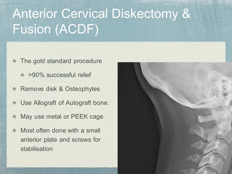 Anterior Cervical Diskectomy & Fusion (ACDF)