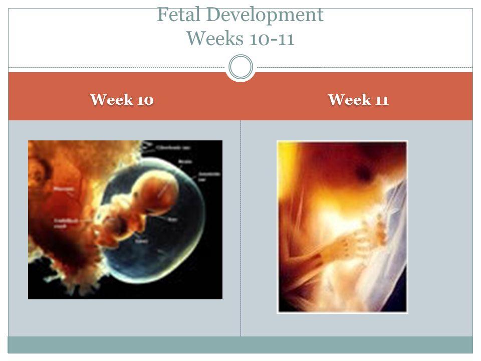 Fetal Development Weeks 10-11