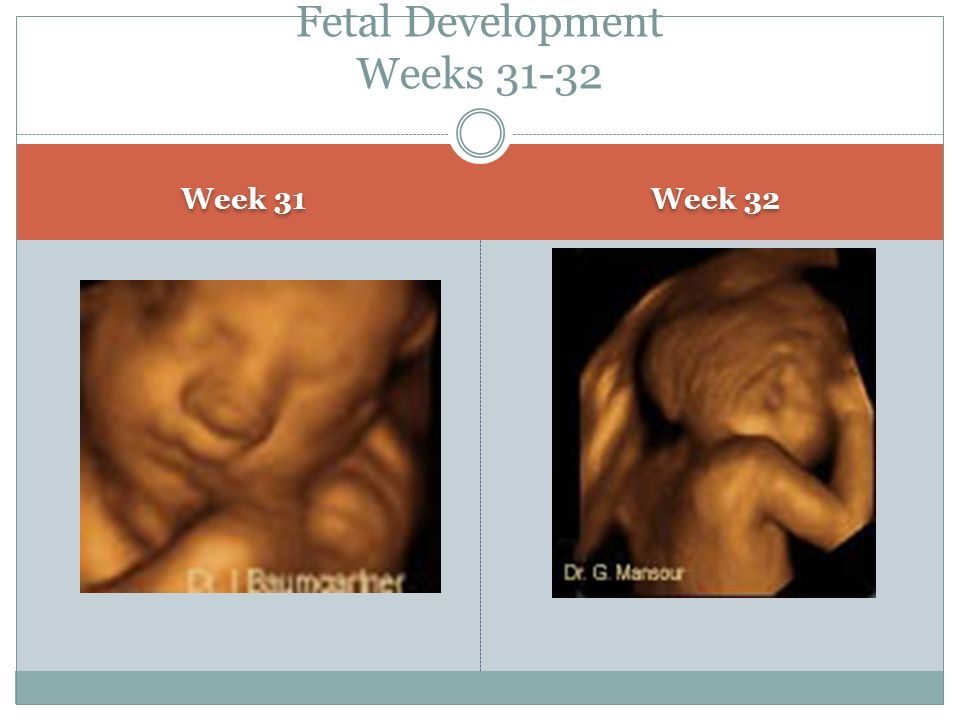 Fetal Development Weeks 31-32