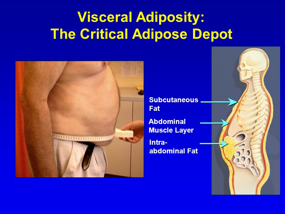 Visceral Adiposity: The Critical Adipose Depot