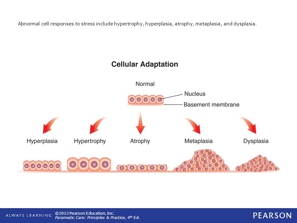 Abnormal cell responses to stress include hypertrophy, hyperplasia, atrophy, metaplasia, and dysplasia.