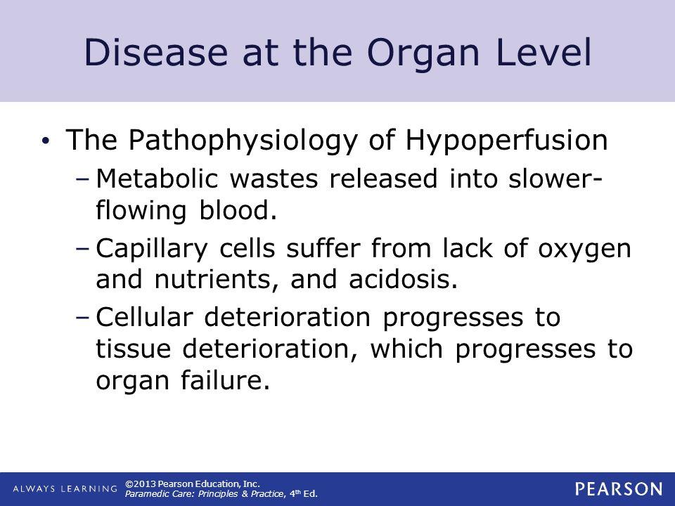 Disease at the Organ Level